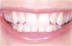 Lächeln- schöne Zähne