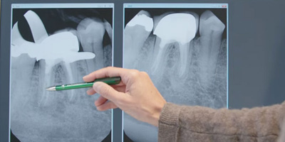 Röntgenbild Zahnwurzel