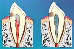 Wurzelbehandlung - Skizze Zahn, Pulpa, Wurzel